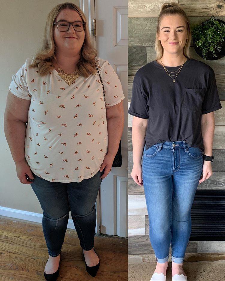 Поправилась на гормонах и похудела на 66 кг - до и после