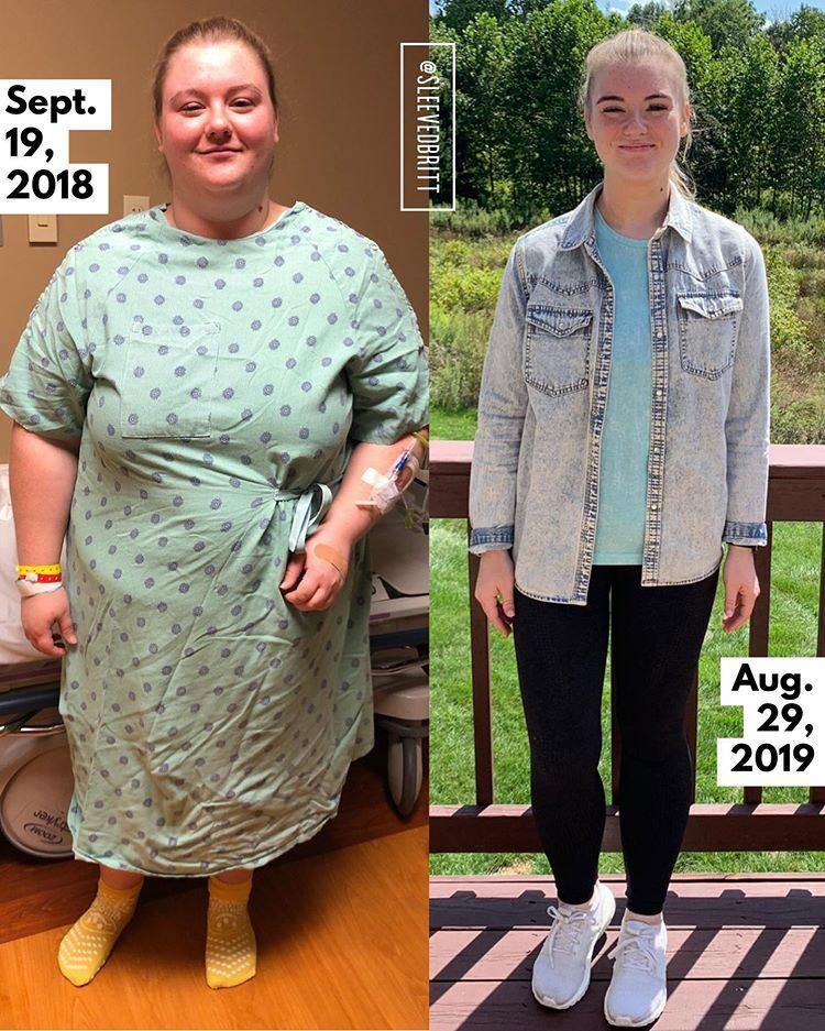 Поправилась на гормонах и похудела на 66 кг - до и после бариатрии