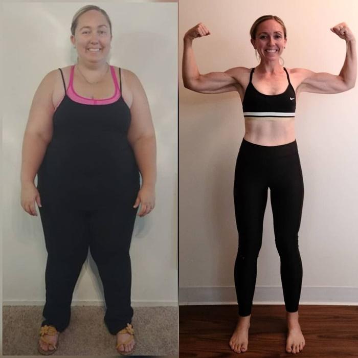 Женщина похудела без бариатрии и липосакции - до и после