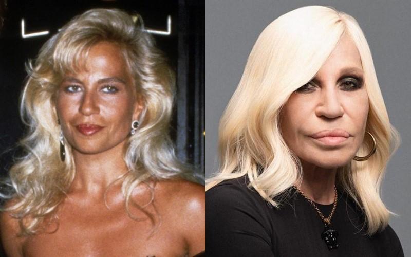 Донателла Версаче до и после пластики - 1989 и 2020