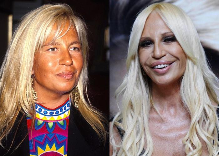 Донателла Версаче до и после пластики - улыбка джокера