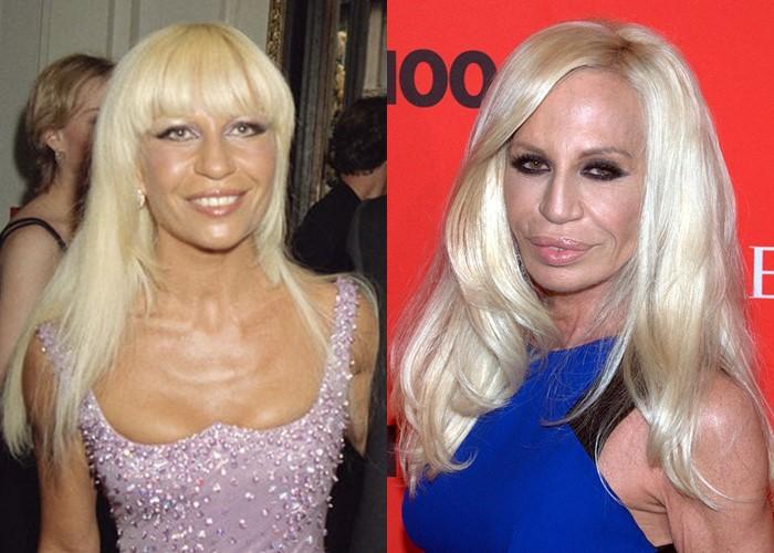 Донателла Версаче до и после пластики - блонд