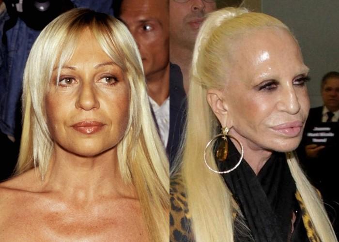 Донателла Версаче до и после пластики - ботокс