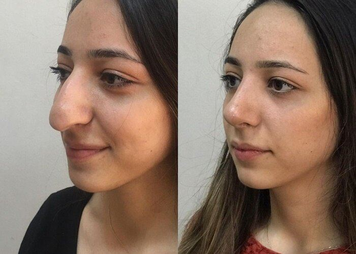 Длинный нос укорачивающая ринопластика - сливовидный нос с опущенным кончиком
