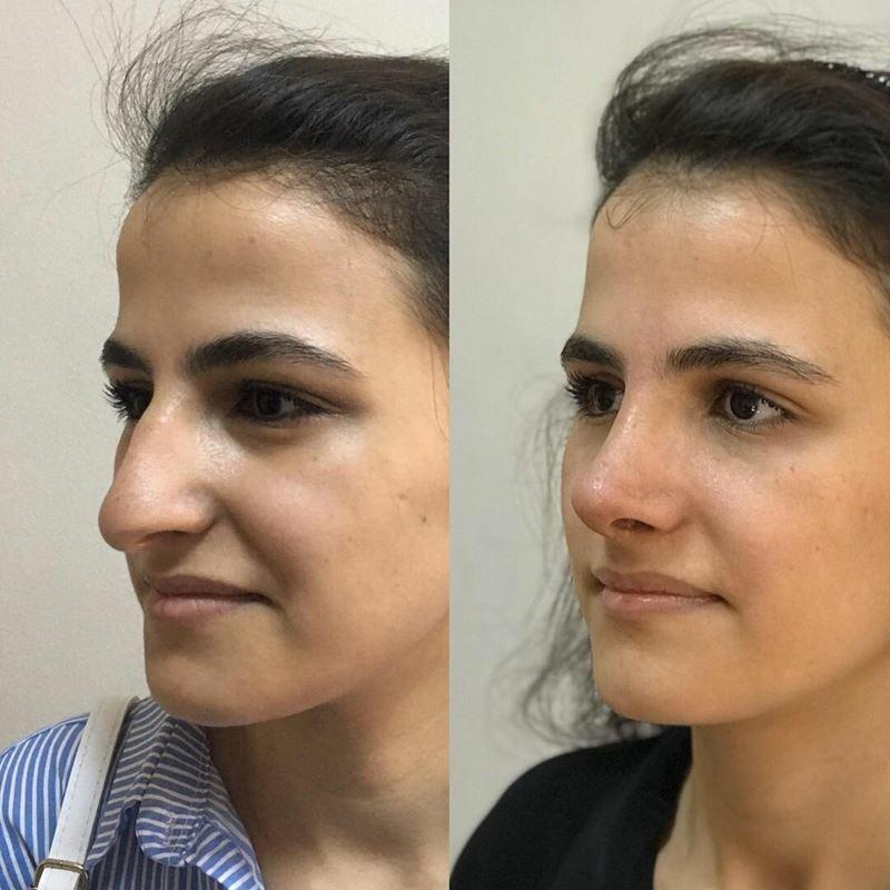 Длинный нос укорачивающая ринопластика - массивный нос