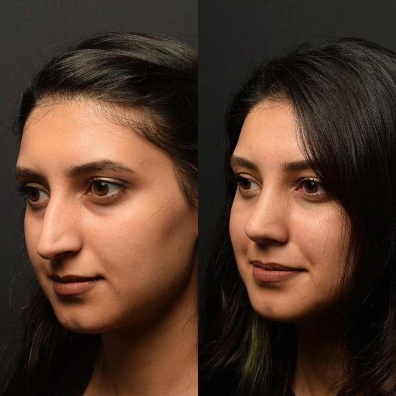Длинный нос укорачивающая ринопластика - орлиный заостренный кончик