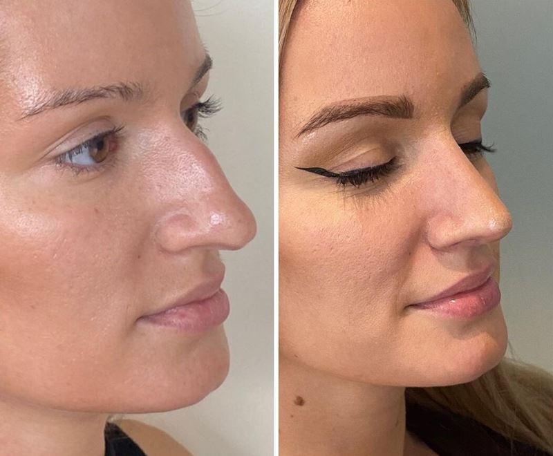Длинный нос укорачивающая ринопластика - горбинка