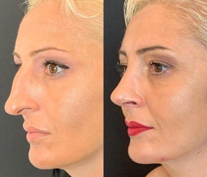 Длинный нос укорачивающая ринопластика - неровный