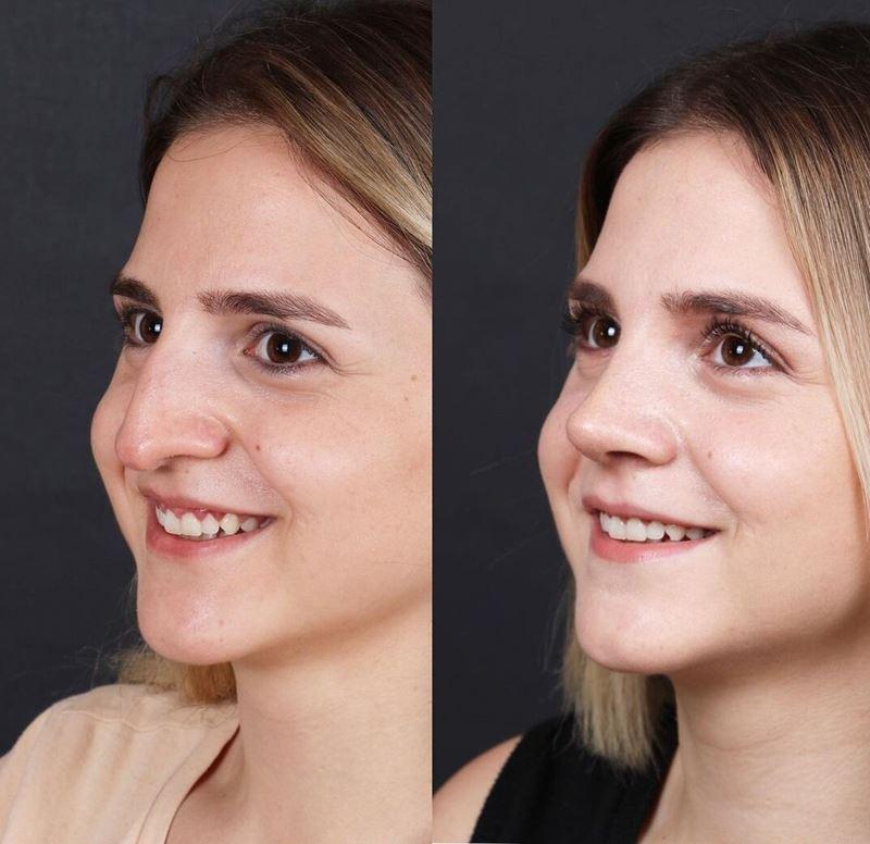 Длинный нос укорачивающая ринопластика - орлиный с горбинкой