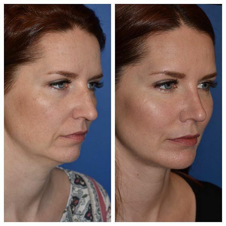 Длинный нос укорачивающая ринопластика - минимальное укорачивание кончика