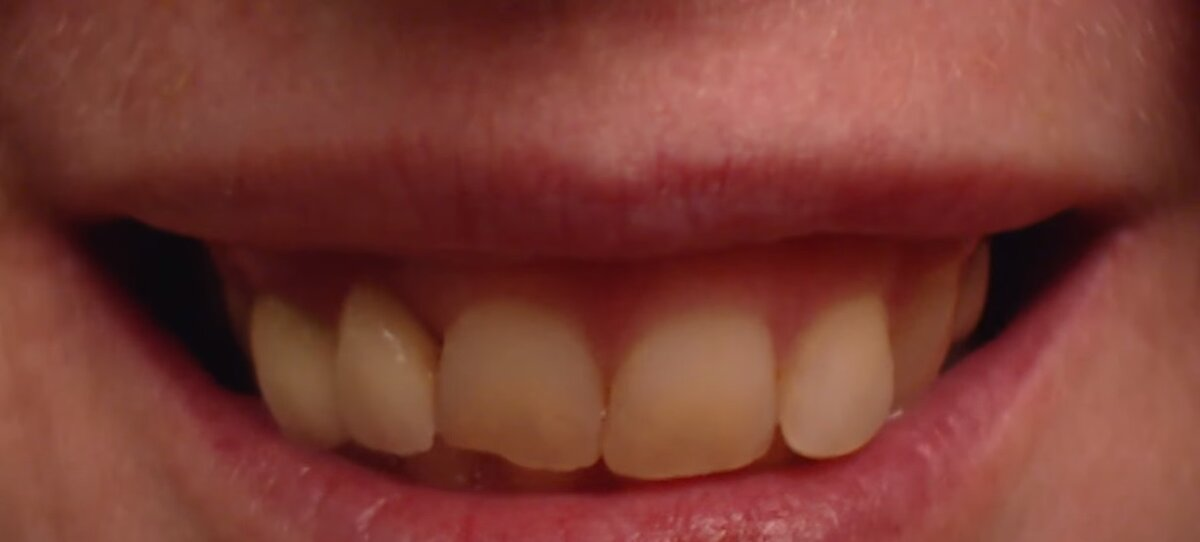 Шэрон - на 10 лет моложе - зубы