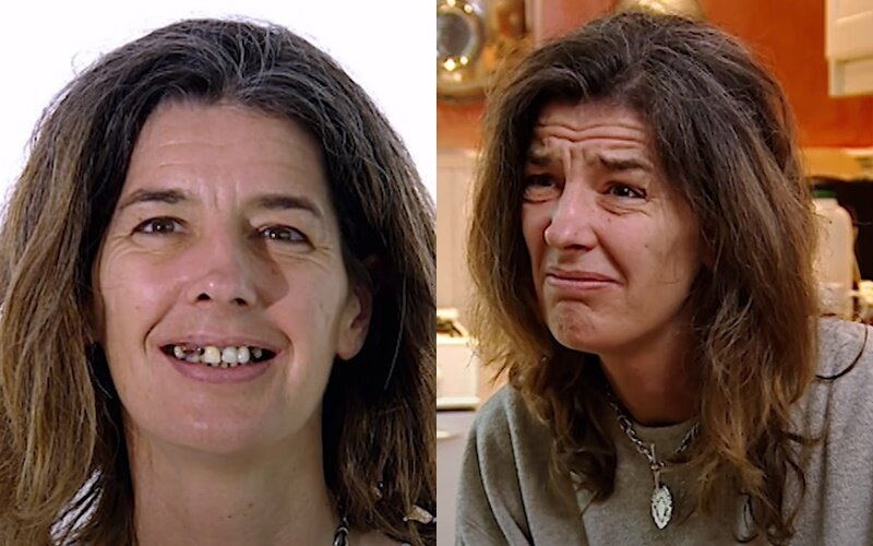 Красивая, но ленивая: как пластика и стоматология преобразили 44-летнюю женщину без зубов, но с сединой и морщинами