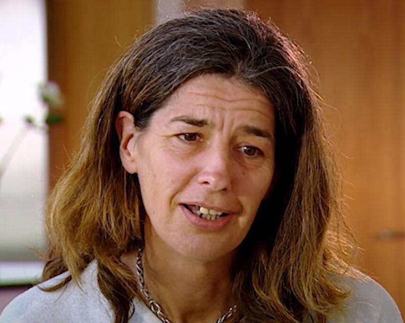 Пластика и стоматология для Дженни - на 20 лет старше