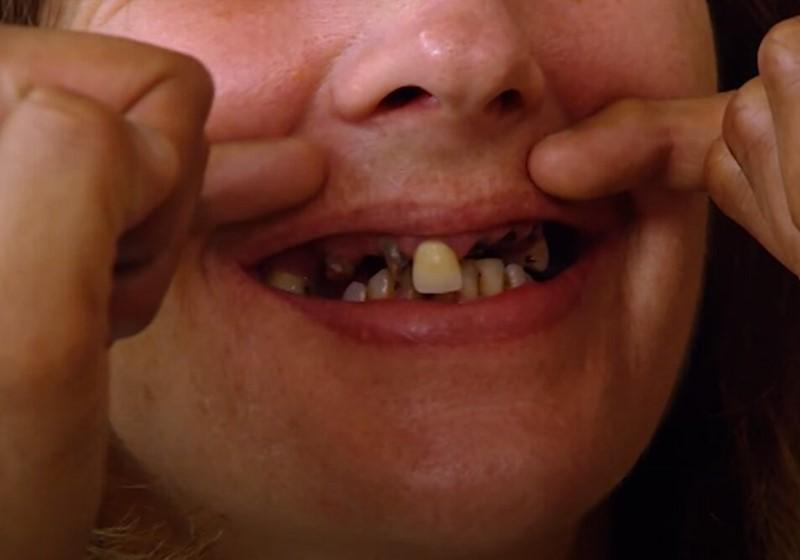 Пластика и стоматология для Дженни - без зубов