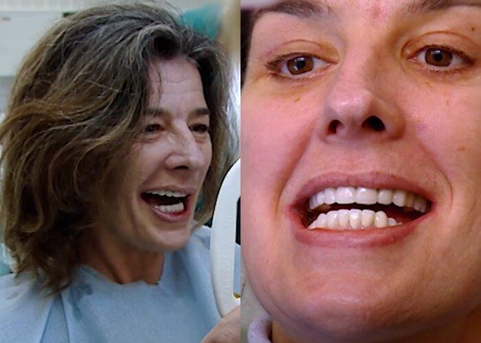 Пластика и стоматология для Дженни - после виниров