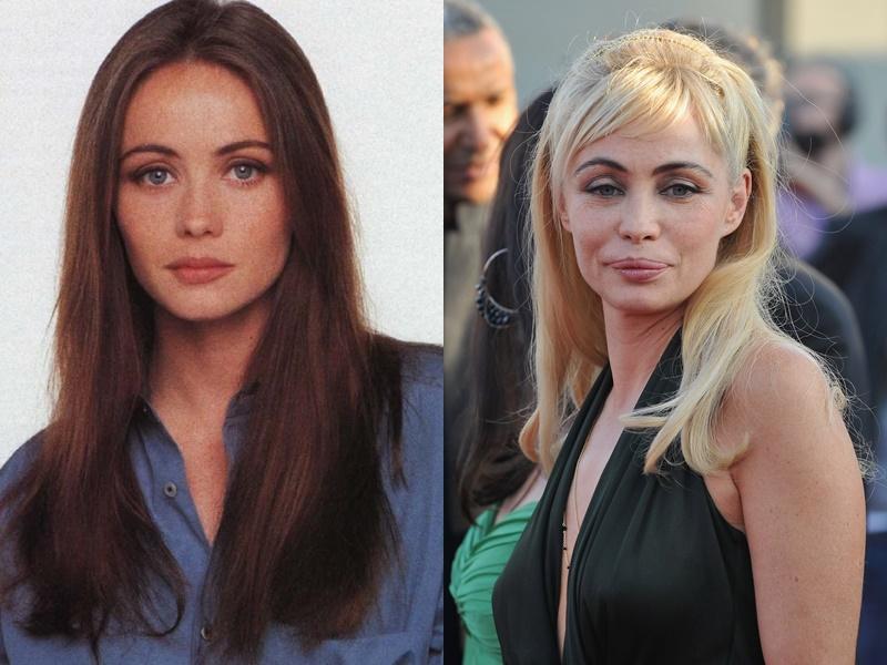 Пластика Губ Эмманюэль Беар - в молодости и зрелости до и после