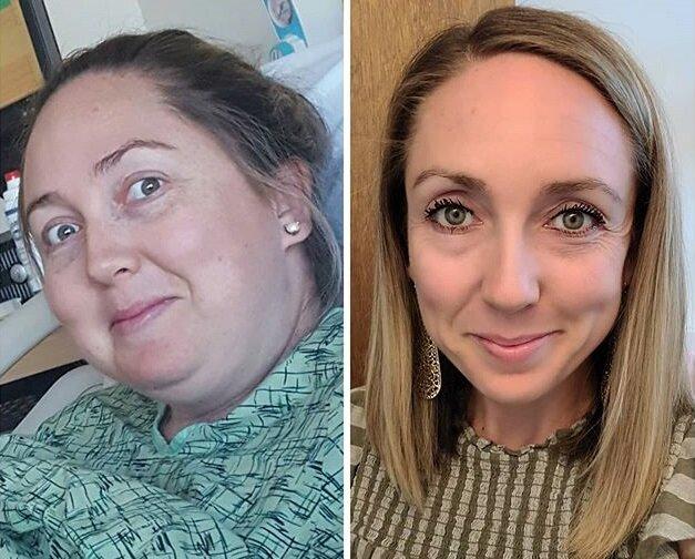 Лица женщин после похудения на 40-80 кг - Пегги