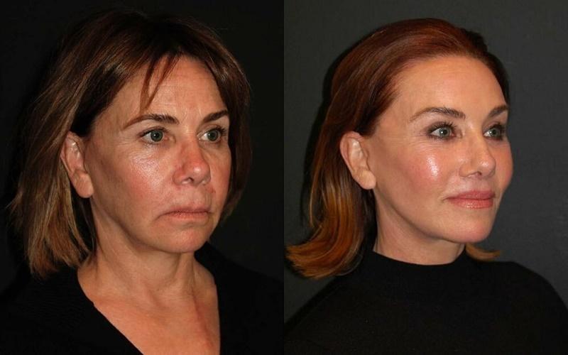 Фото до и после пластики с подтяжкой лица - Чёткий овал и сияющая кожа