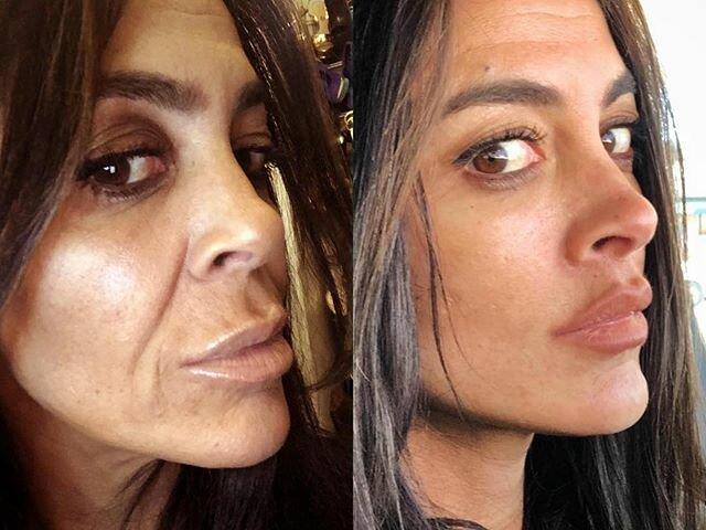 Фото до и после пластики с подтяжкой лица - Разглаживание носогубных складок