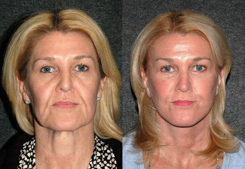 Фото до и после пластики с подтяжкой лица - Устранение глубоких носогубных складок