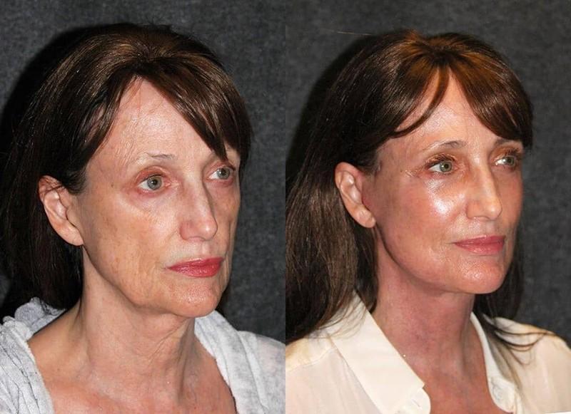 Фото до и после пластики с подтяжкой лица - Устранение дряблости и придание упругости