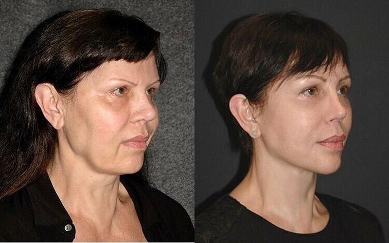 Фото до и после пластики с подтяжкой лица - Липосакция и ринопластика