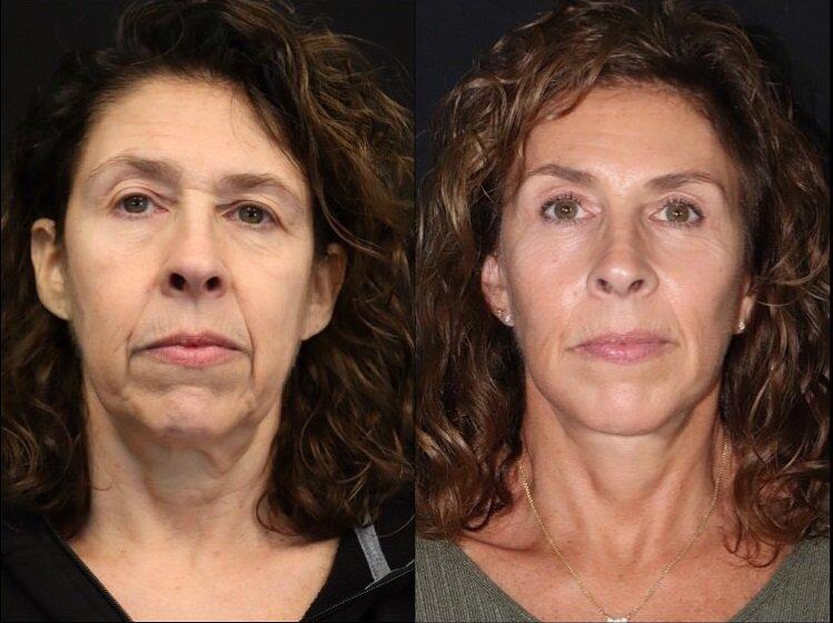 Фото до и после пластики с подтяжкой лица - Идеальный фейслифтинг