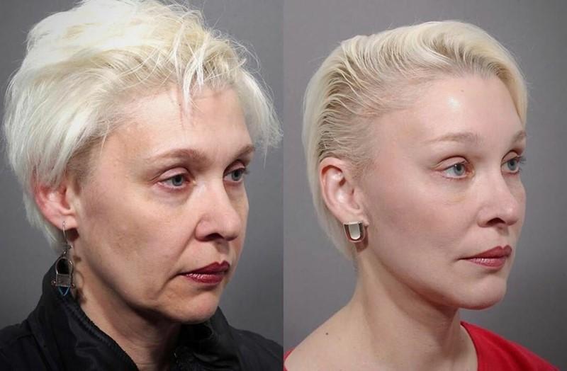 Фото до и после пластики с подтяжкой лица - «Лисьи глаза» и чёткий овал