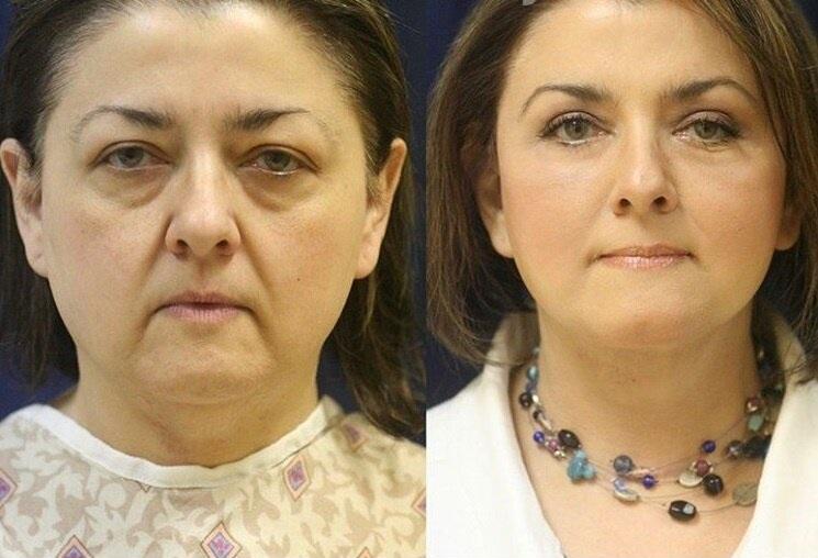 Фото до и после пластики с подтяжкой лица - носогубки и блефаропластика