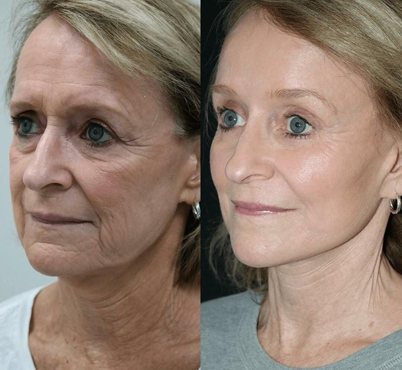 Фото до и после пластики с подтяжкой лица - Омоложение лица с мелкоморщинистым типом старения
