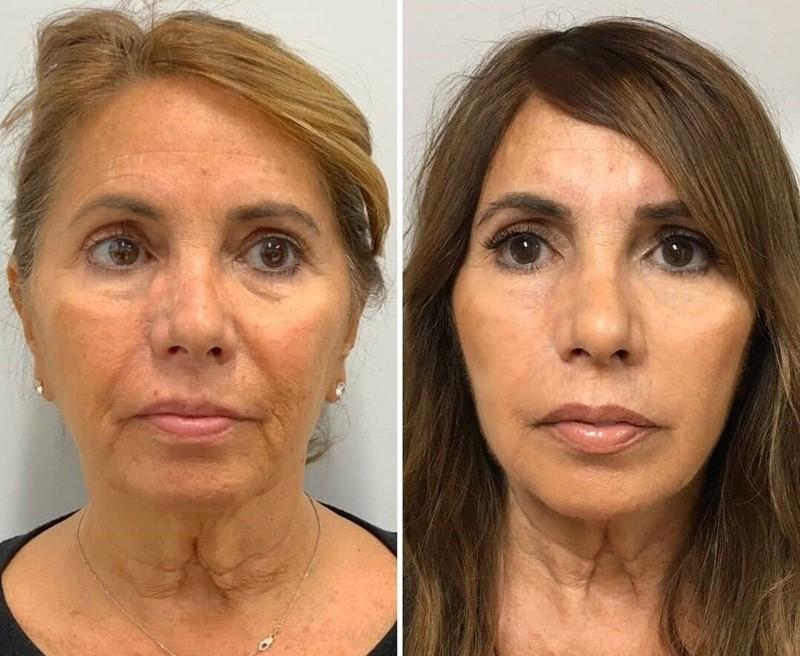 Фото до и после пластики с подтяжкой лица - Омоложение «нитями»