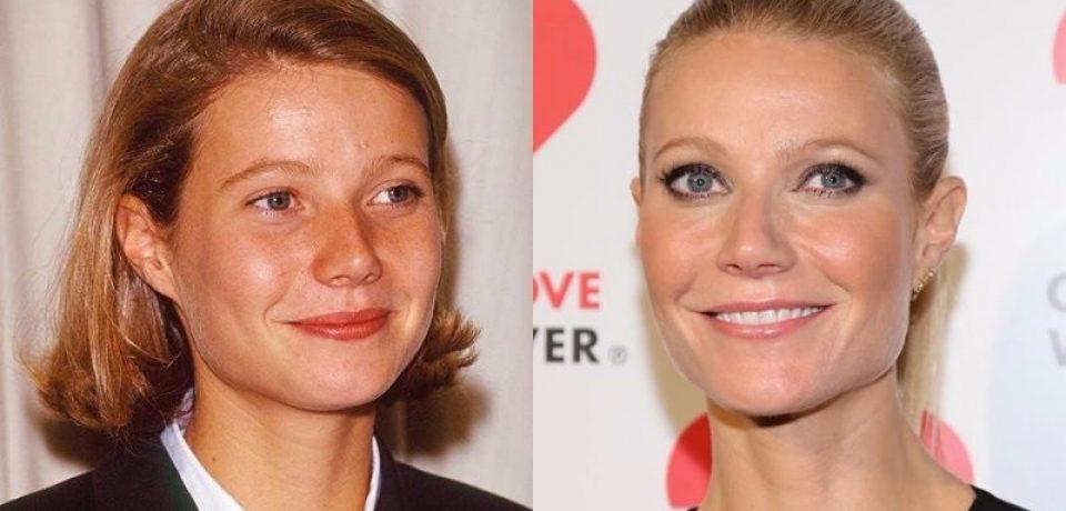 Красота без «прокачки»: знаменитости с тонкими губами