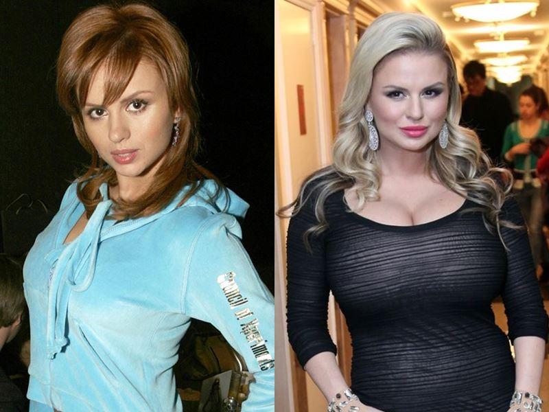 Звезды, которым грудь помогла сделать карьеру - Анна Семенович