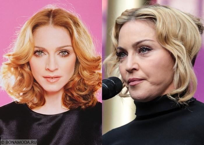 10 звёзд, которые увлеклись ботоксом и филлерами - Мадонна