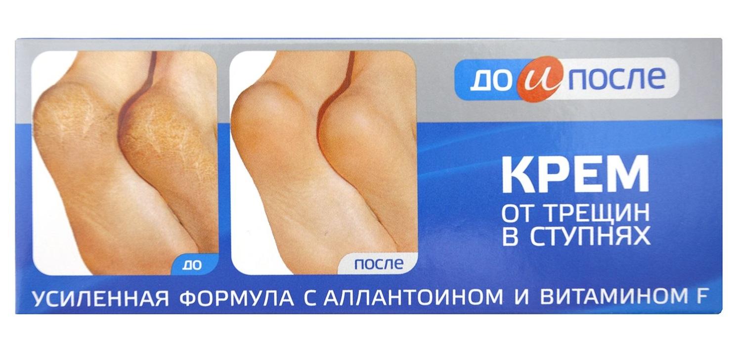 Косметика из «Фикс Прайс» - Крем для ног от трещин в ступнях «До и после»