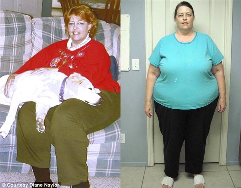 Как в 60 лет похудеть на 102 килограмма и изменить свою жизнь - фото Дианы Нейлор