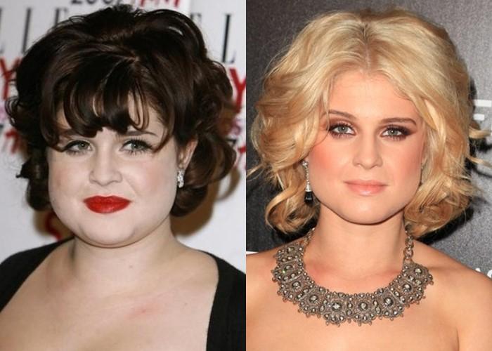 Как похудение меняет лицо: 10 звёзд со щеками и скулами - Келли Осборн