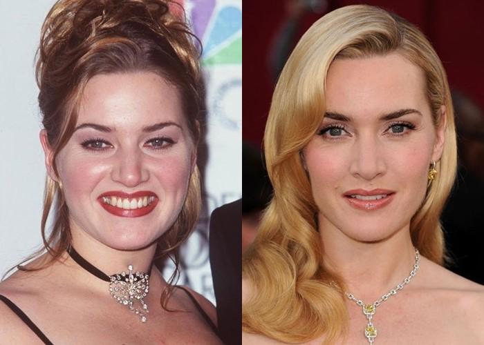 Как похудение меняет лицо: 10 звёзд со щеками и скулами - Кейт Уинслет