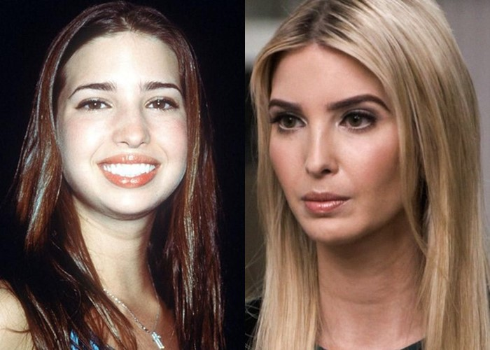 Как похудение меняет лицо: 10 звёзд со щеками и скулами - Иванка Трамп