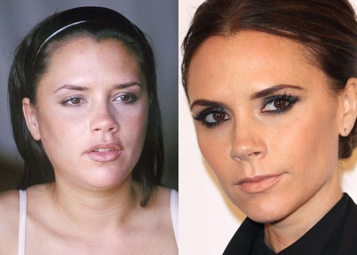 Как похудение меняет лицо: 10 звёзд со щеками и скулами - Виктория Бэкхем