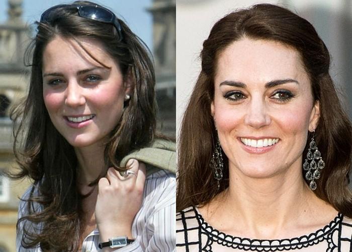 Как похудение меняет лицо: 10 звёзд со щеками и скулами - Кейт Миддлтон