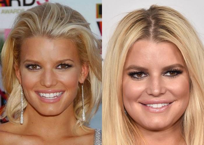 Как лишний вес меняет разные лица: 10 звёзд до и после прибавки в весе - Джессика Симпсон