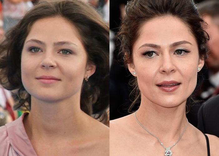 Жиру нет (а щеки долой): лица российских звёзд после похудения - Елена Лядова