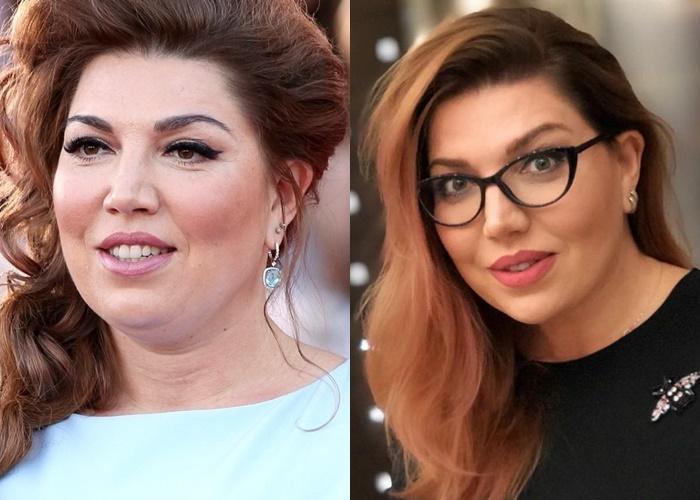 Жиру нет (а щеки долой): лица российских звёзд после похудения - Екатерина Скулкина
