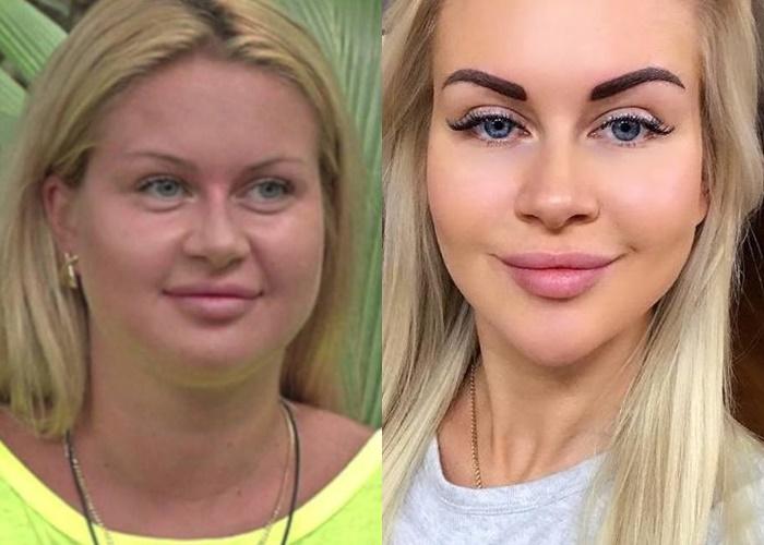 Жиру нет (а щеки долой): лица российских звёзд после похудения - Марина Африкантова