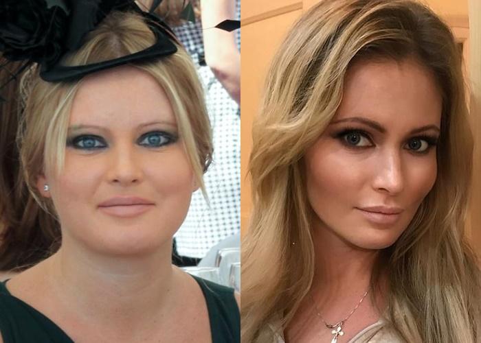 Жиру нет (а щеки долой): лица российских звёзд после похудения - Дана Борисова