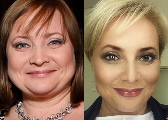 Жиру нет (а щеки долой): лица российских звёзд после похудения - Светлана Пермякова