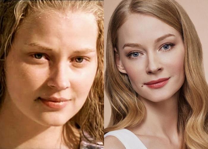 Жиру нет (а щеки долой): лица российских звёзд после похудения - Светлана Ходченкова