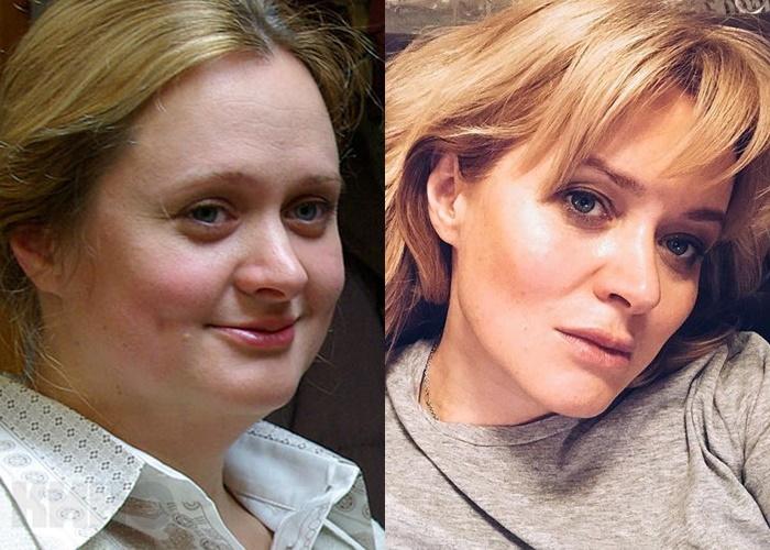 Жиру нет (а щеки долой): лица российских звёзд после похудения - Анна Михалкова