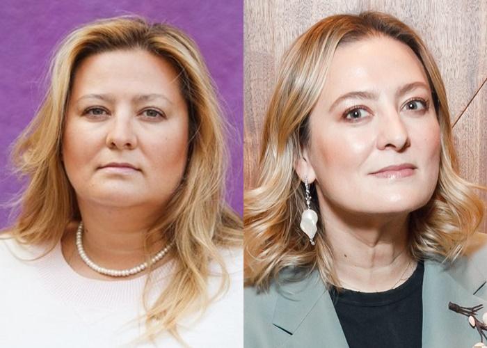 Жиру нет (а щеки долой): лица российских звёзд после похудения - Маша Фёдорова